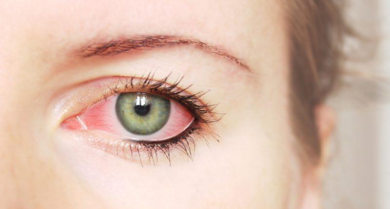 e559e33b4 Portal da Visão Curitiba   Síndrome do olho seco: o que é, causas ...
