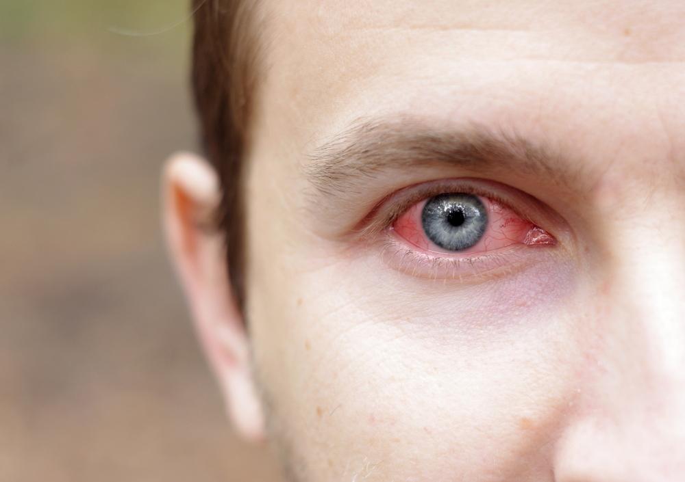 conjuntivite_causas_sintomas_tratamento