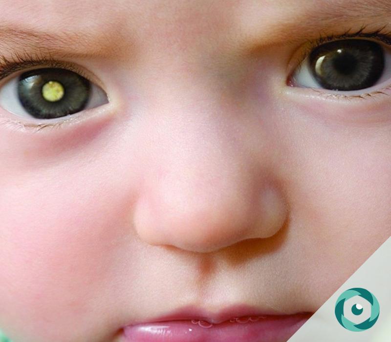 câncer de olho