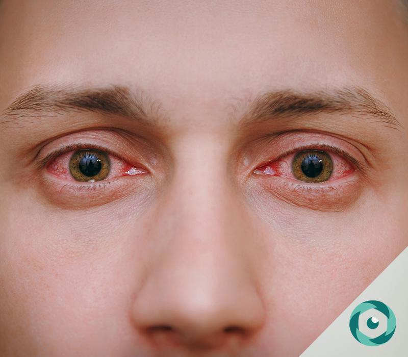 inflamação ocular